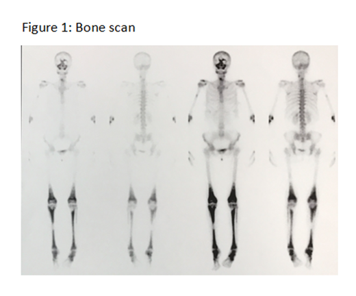 5b0f69b19cacb-bonescan.png